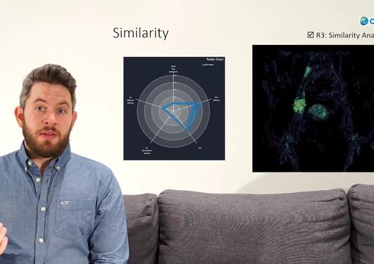 ParaGlyder: Probe-driven Interactive VisualAnalysis for Multiparametric Medical Imaging Data
