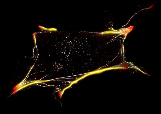 The image shows a stained cell with adhesion patches in red and actin cytoskeleton in yellow/white