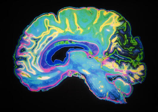 Scan of a human brain, to accompany an article about a new theory of cognitive functions.