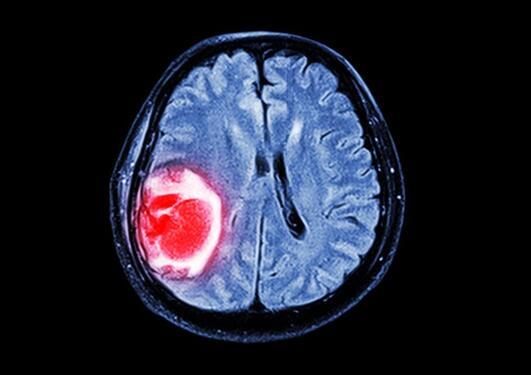 Illustrasjonsbilde scanning av hjerne med svulst