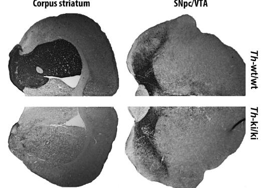 The comparison of the amount of TH protein in brains of healthy (above) and sick (below) mice. The TH protein is colored, and can be seen as dark areas. The pictures clearly shows that it is the transportation to the striatum that is affected.