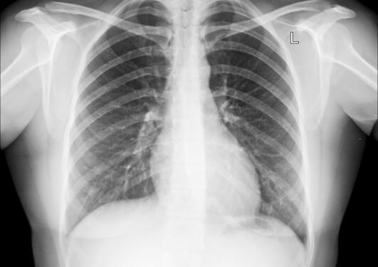 Røntgenbilde av lunger
