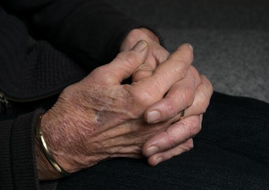 Eldre hender med leddgikt