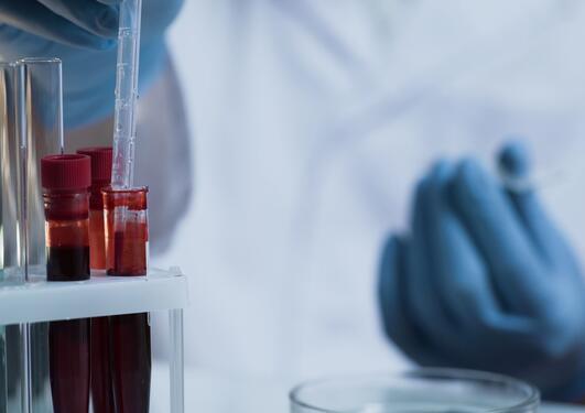 innovasjon medisin