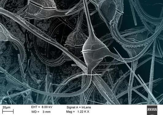 Mikroskop bilde av algeoppblomstring