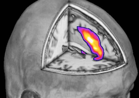 MRscanning hjerne, frontallap