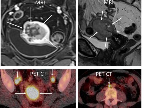 MR og PET CT