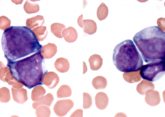 Leukaemia illustration