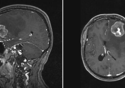 A melanoma patient with a brain metastasis localized in the frontal lobe.