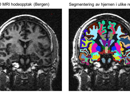 """MRI opptak fra """"aldringsprosjektet"""" i Bergen (NCNG-cohort, PI: Prof. Astri J. Lundervold, Institutt for biologisk og medisinsk psykologi, UiB) som inngår i studien."""