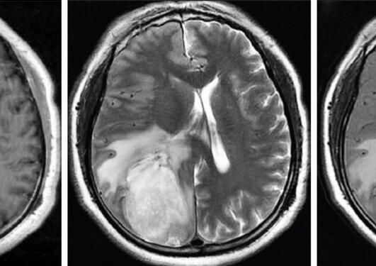 The image series shows different MRI pictures of a patient diagnosed with an astrocytoma located in the left hemisphere.