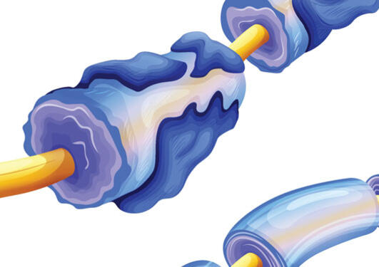 illustration of myelin deterioration