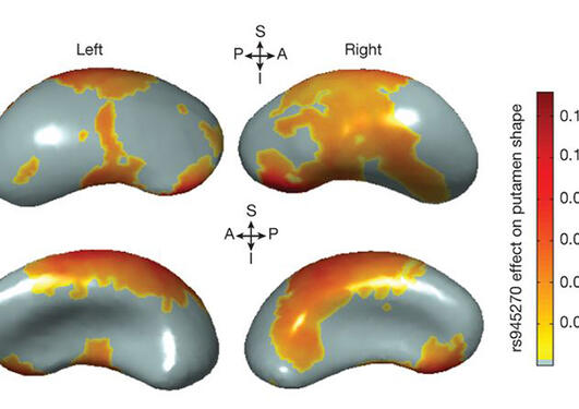 Illustrasjonsbilete frå studien: Analysane syner at genvariantar påverkar storleiken på ulike delar av hjernen.