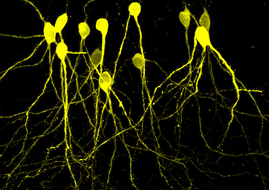 Hipppocampal neurons