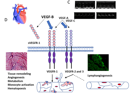 VEGF-B overexpressing heart is sensitized to develop heart failure in DOCA-salt hypertensive rats