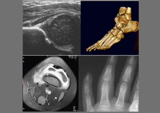 Kombinert, og riktig bruk av de ulike modaliteter står sentralt i vår forskning, her illustrert ved et ultralydbilde av umodent hofteledd hos nyfødt; 3-D CT bilde av fot hos en pasient med Trevors sykdom, postkontrast MR bilde av et kne, samt røntgenbilde