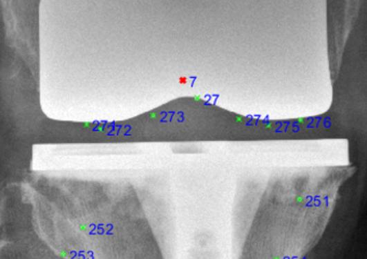 RSA X-ray of a Persona TKA