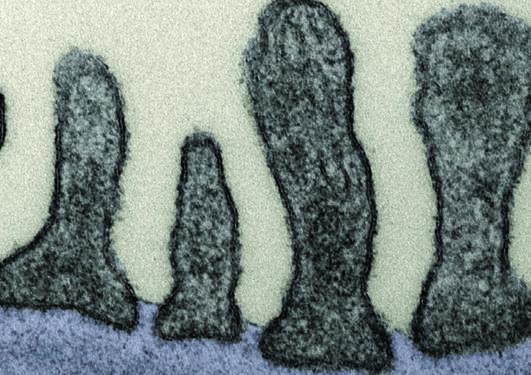 Electron microscopy of the glomerular filtration barrier