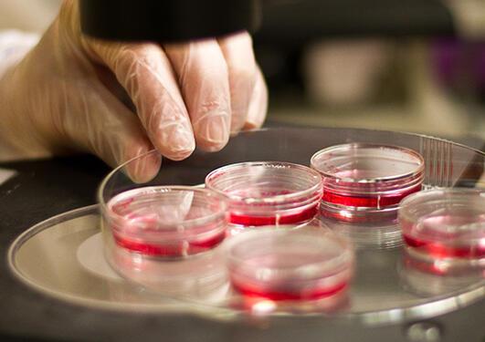 Petri dishes under a microscope