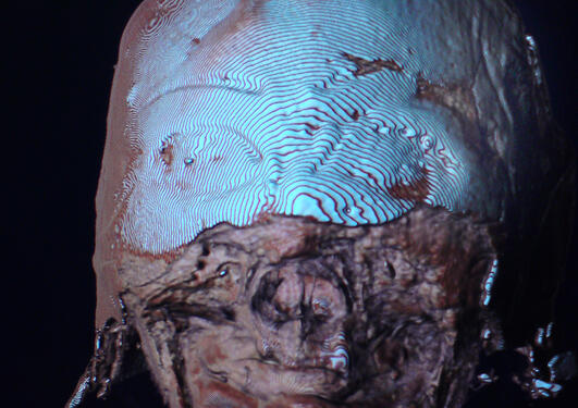 Teshemmin har hatt en maske over ansiktet som er blitt røvet fra henne
