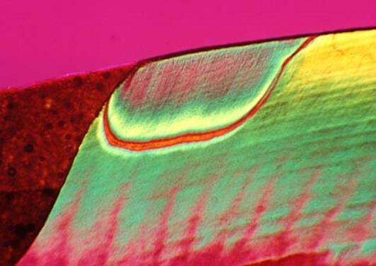 Tidlig karies i overflaten av tannemalje ved en komposittplast-fylling (rød...