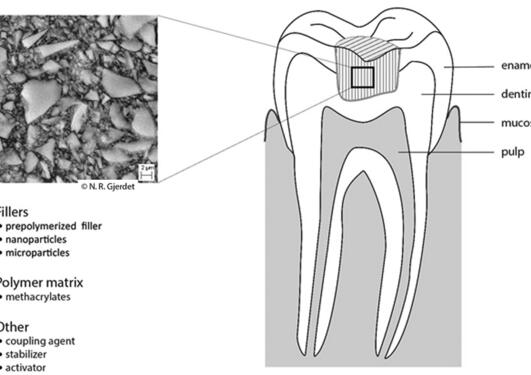 Composite dental filling exposure routes (from V. Ansteinsson's PhD thesis)