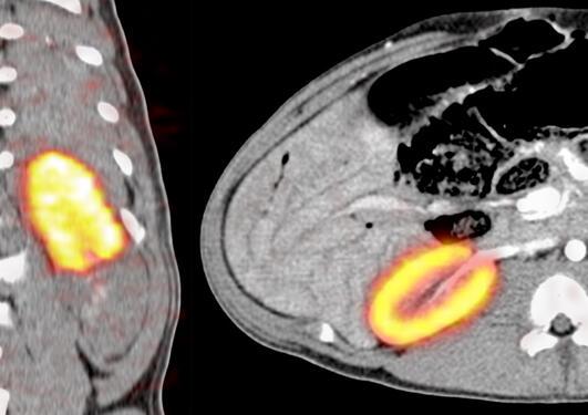 PET-CT som viser glomerulusfiltrasjon i en anestesert gris etter avstengning...